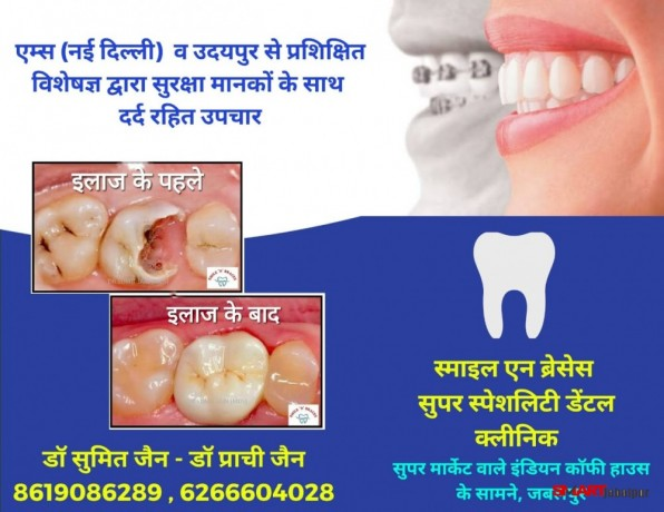 best-dentist-dental-surgeon-orthodontist-clinic-office-in-jabalpur-dr-sumit-jain-in-jabalpur-smile-n-braces-superspeciality-dental-clinic-big-1